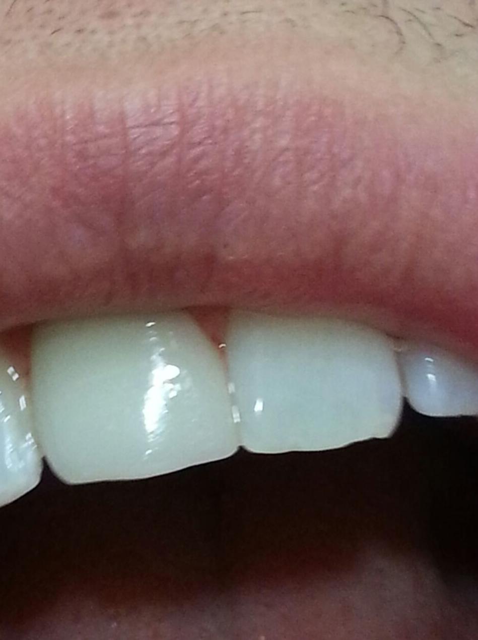 Fundas dentales Murcia, Clinica dental Murcia, Dentistas Murcia, Urgencias dentales Murcia, Dentistas de urgencia Murcia, Clinicas dentales de urgencia Murcia