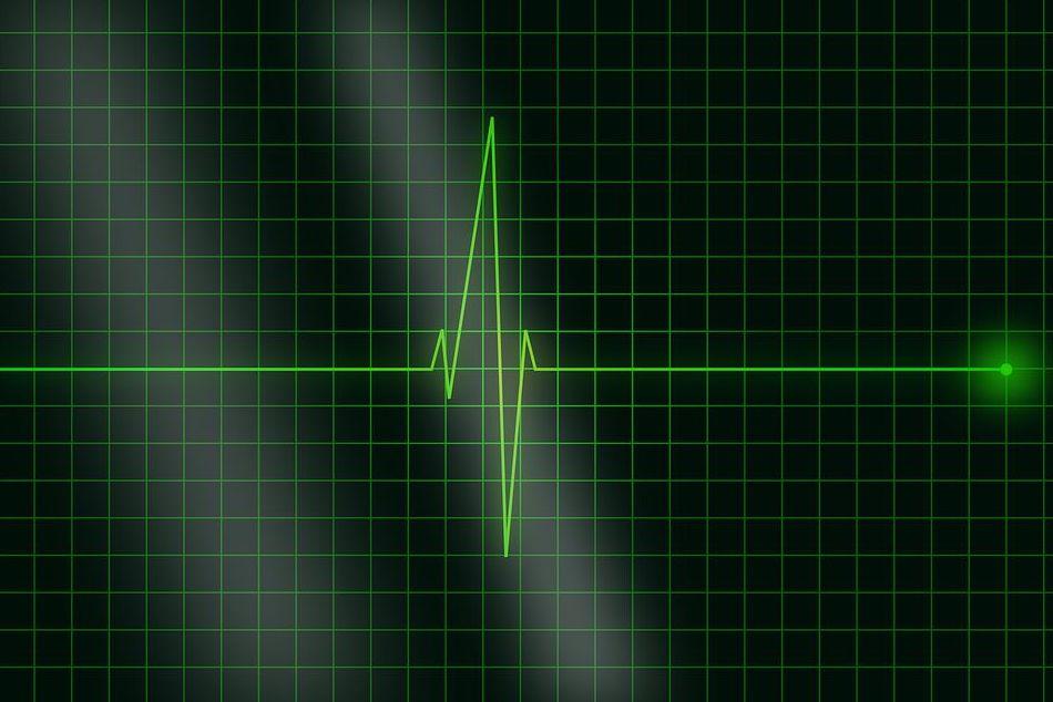 Electrocardiografía: Catálogo de Clínica Veterinaria Los Galgos