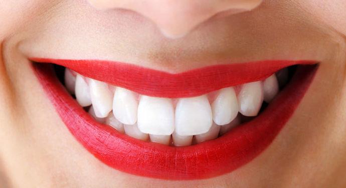 Estética Dental en Velilla de San Antonio
