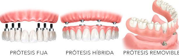 Protesis dentales Fijas en Velilla de San Antonio
