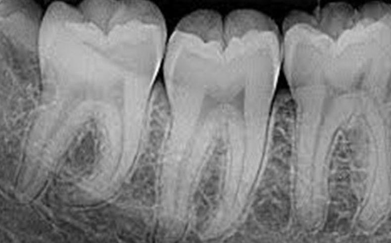 Radiología intaroral y extraoral.  : Especialidades de Clínica Dental Zurita - Dr. Gerardo Zurita López