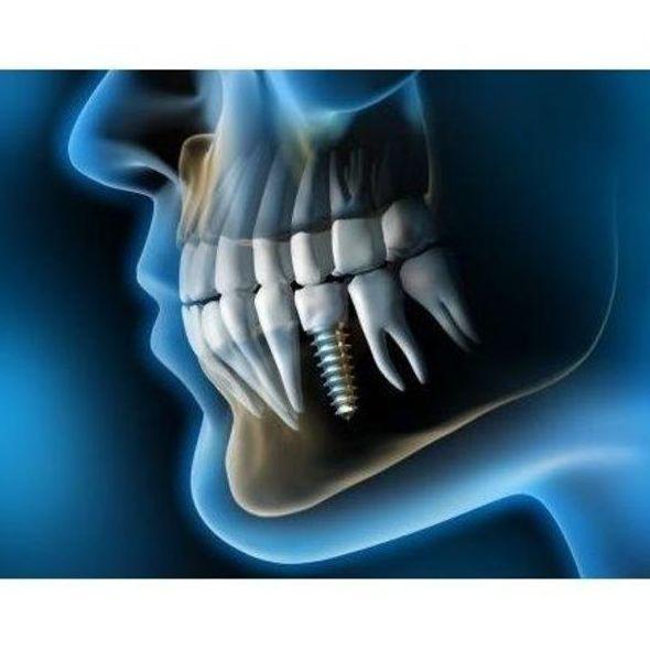 Implantes dentales en Velilla de San Antonio