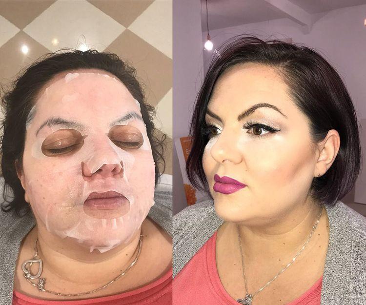 Tratamientos de estética facial en Málaga