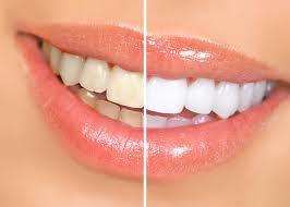 Estética: Servicios de Clínica Dental Ruisánchez