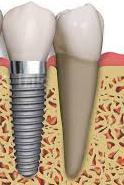 Implantología: Servicios de Clínica Dental Ruisánchez