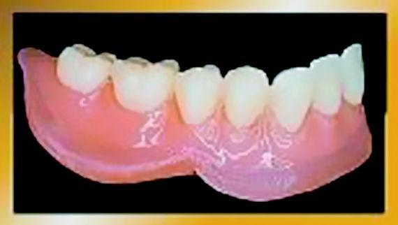 Foto 2 de Protésicos dentales en León | Dental Carretero