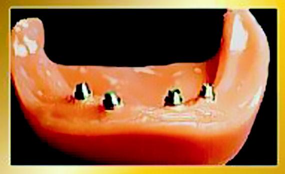 Foto 6 de Protésicos dentales en León | Dental Carretero