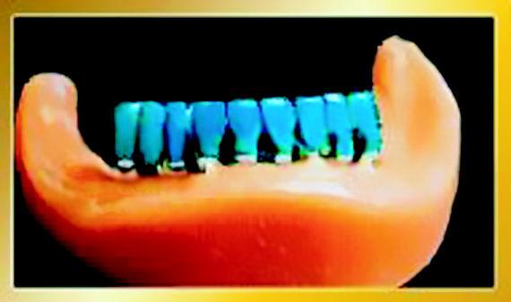 Foto 7 de Protésicos dentales en León | Dental Carretero