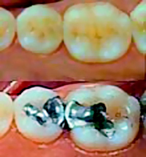 Foto 4 de Protésicos dentales en León | Dental Carretero