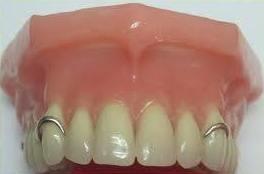 Protesis dentales eixample barcelona|Clinica esteve padros
