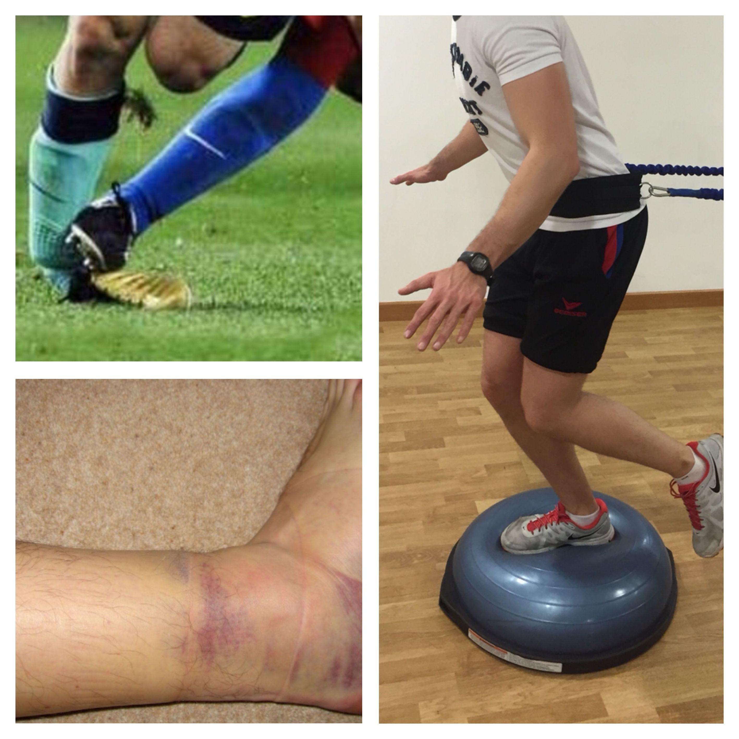 Tratamiento de esguince de tobillo: Especialidades de Clínica Fisioterapia Maccari Sport