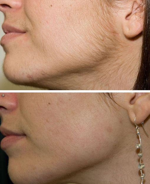 Tratamiento para eliminación del vello de la cara
