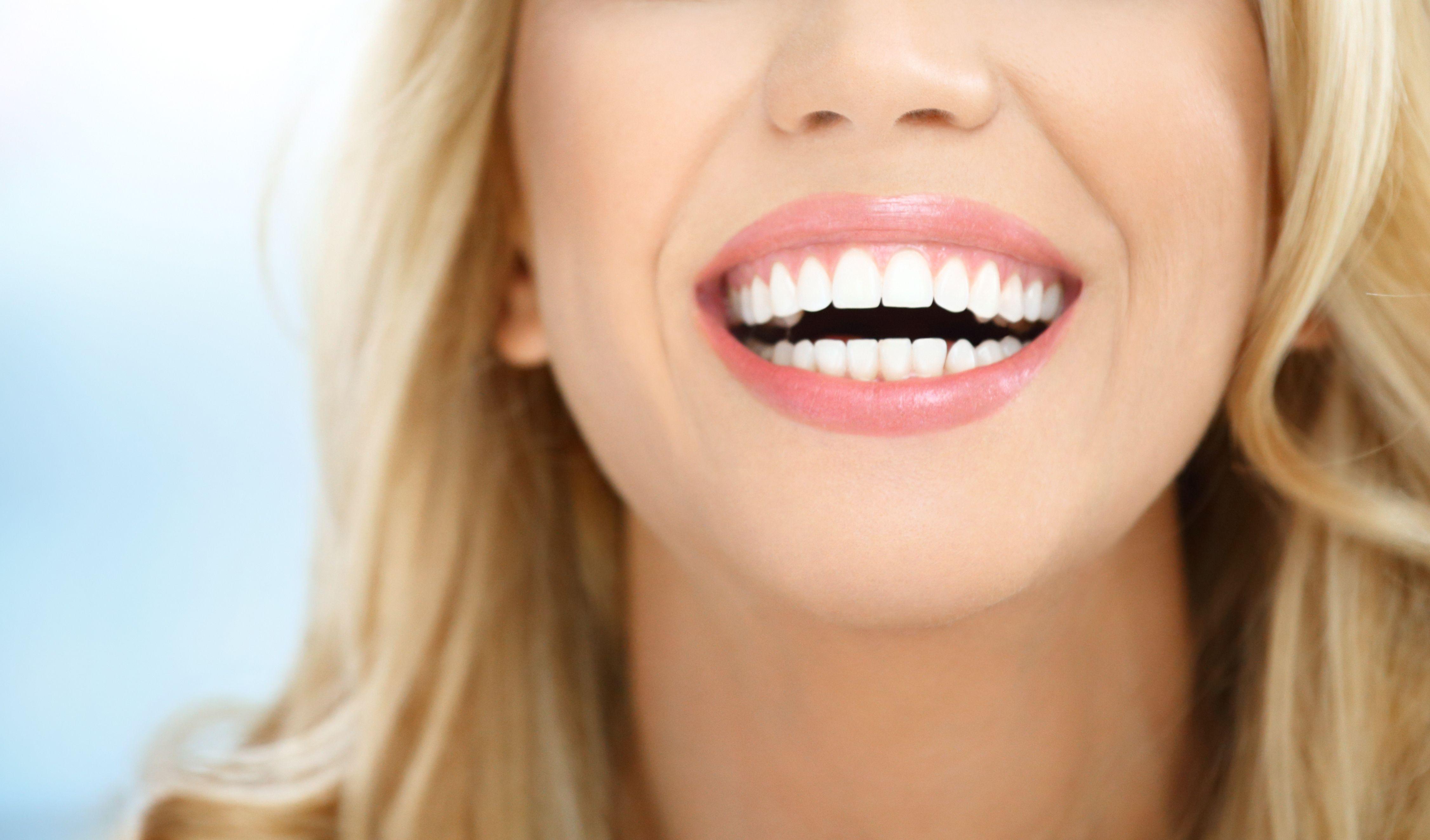 Blanqueamiento dental precio Valdemoro