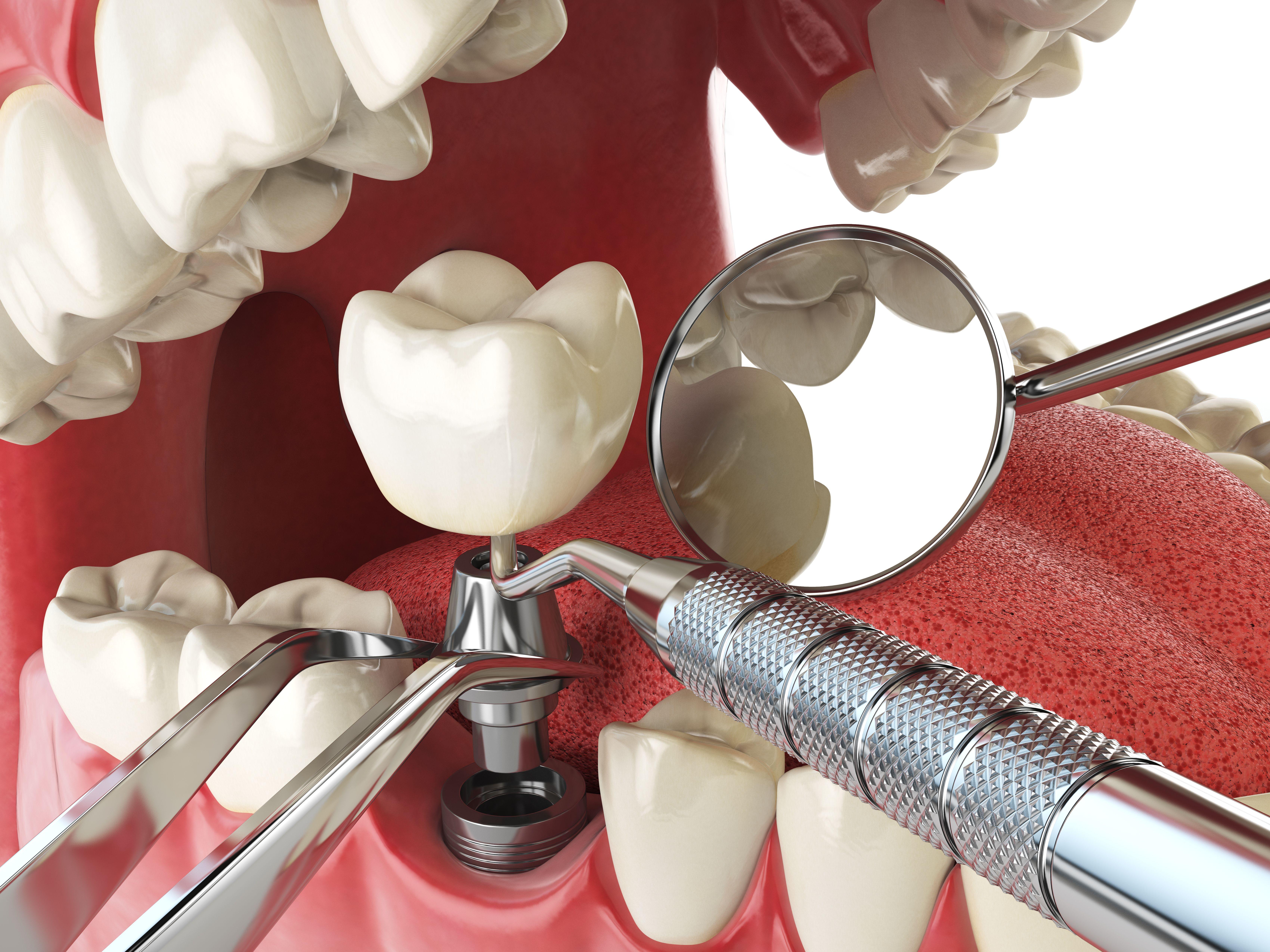 Implantes: Servicios y casos de clínica dental DR. MOLINETE