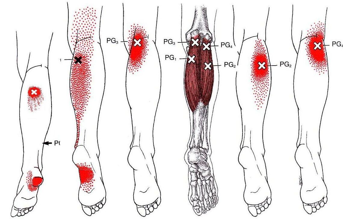 Tatalgia: Servicios de Clínica de Podología y Fisioterapia Thalus