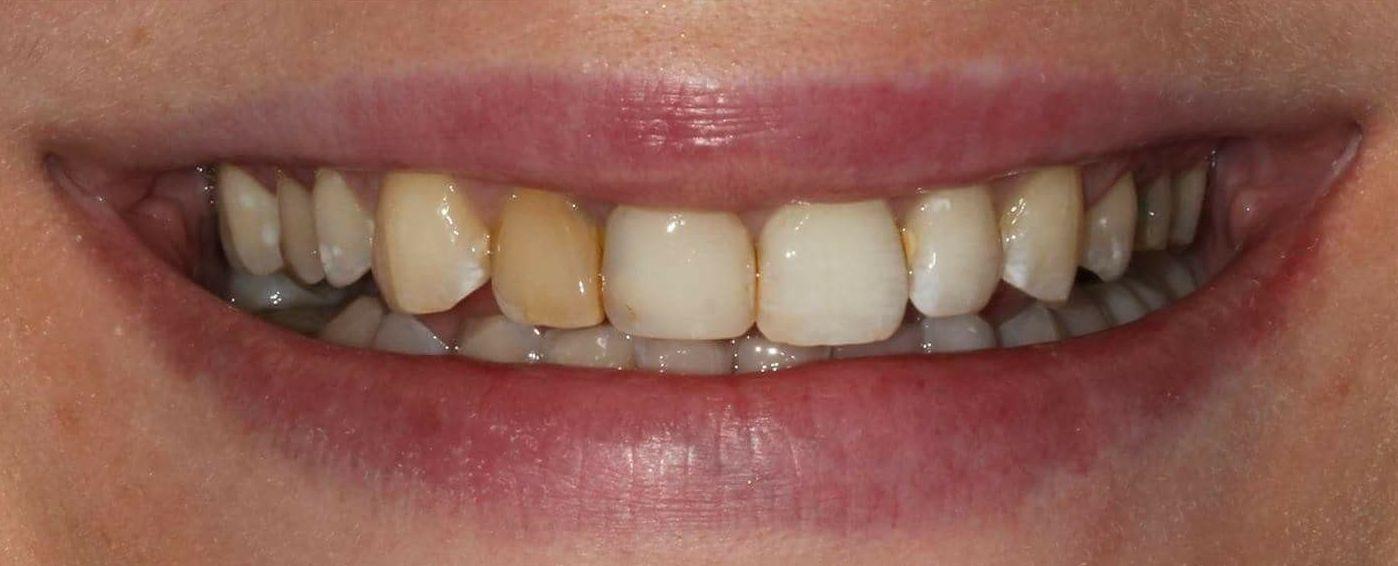 Foto 4 de Clínica dental en Madrid | Clínica Dental Dres. Nuñez García