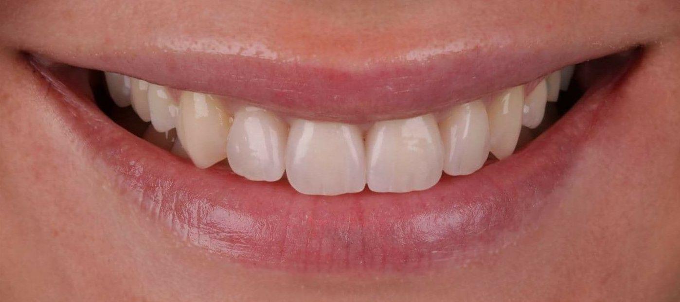Foto 2 de Clínica dental en Madrid | Clínica Dental Dres. Nuñez García