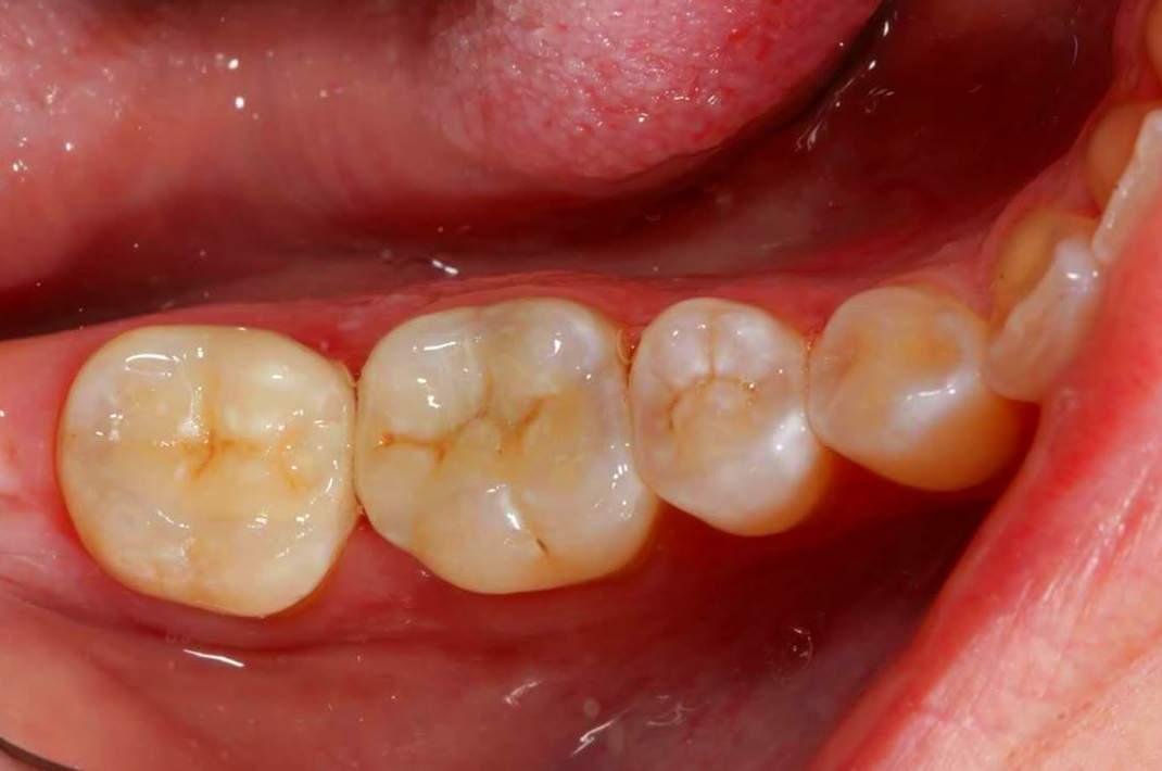 Foto 7 de Clínica dental en Madrid | Clínica Dental Dres. Nuñez García