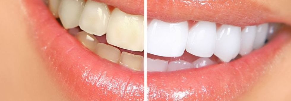 Estética dental blanqueamientos