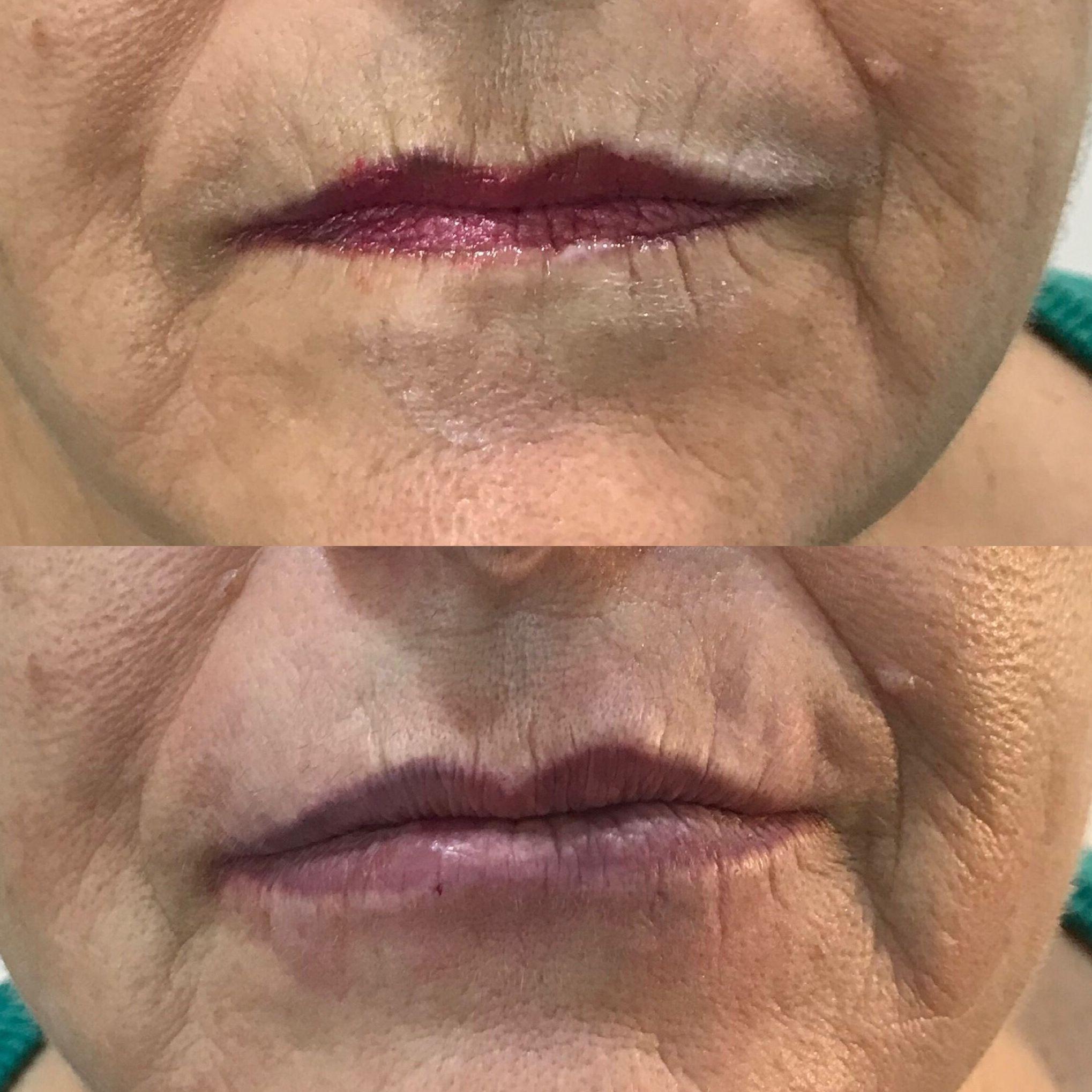 Corrección arrugas perilabiales