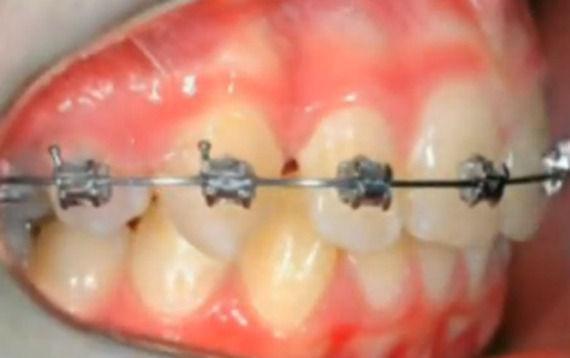 Foto 4 de Dentistas en  | Grupo Clínico Dental       Dr. Borrega