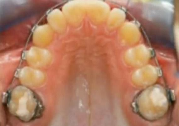 Foto 5 de Dentistas en  | Grupo Clínico Dental       Dr. Borrega