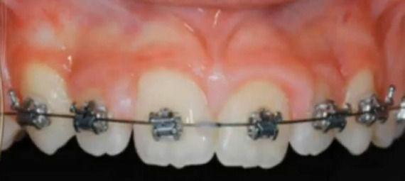 Foto 3 de Dentistas en  | Grupo Clínico Dental       Dr. Borrega