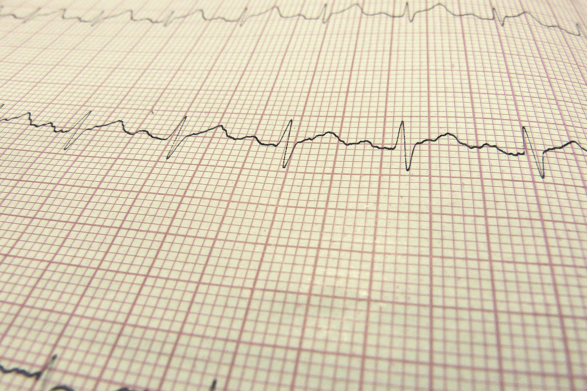 Electrocardiograma: Servicios de Vetalliance Clínica Veterinaria