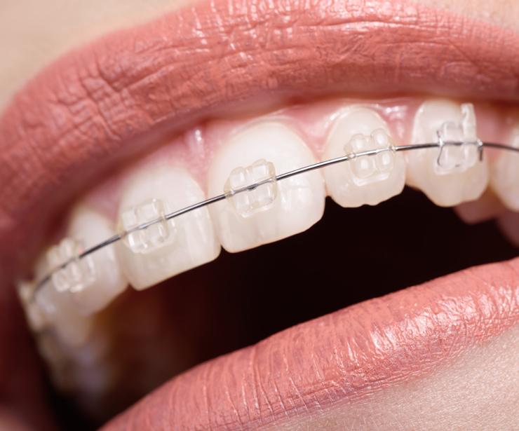 Ortodoncia para adultos en Esparreguera