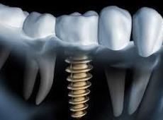 Impante dental