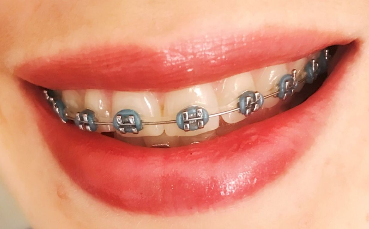 Precio ortodoncia brakets Barcelona