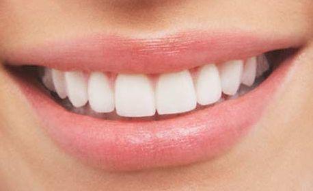 Nuestros servicios : Tratamientos  de Clínica Dental Moreaga - Dra. Daniele