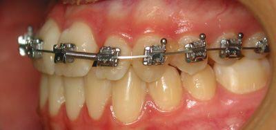 Foto 49 de Dentistas en La Eliana | Centro Odontológico La Eliana