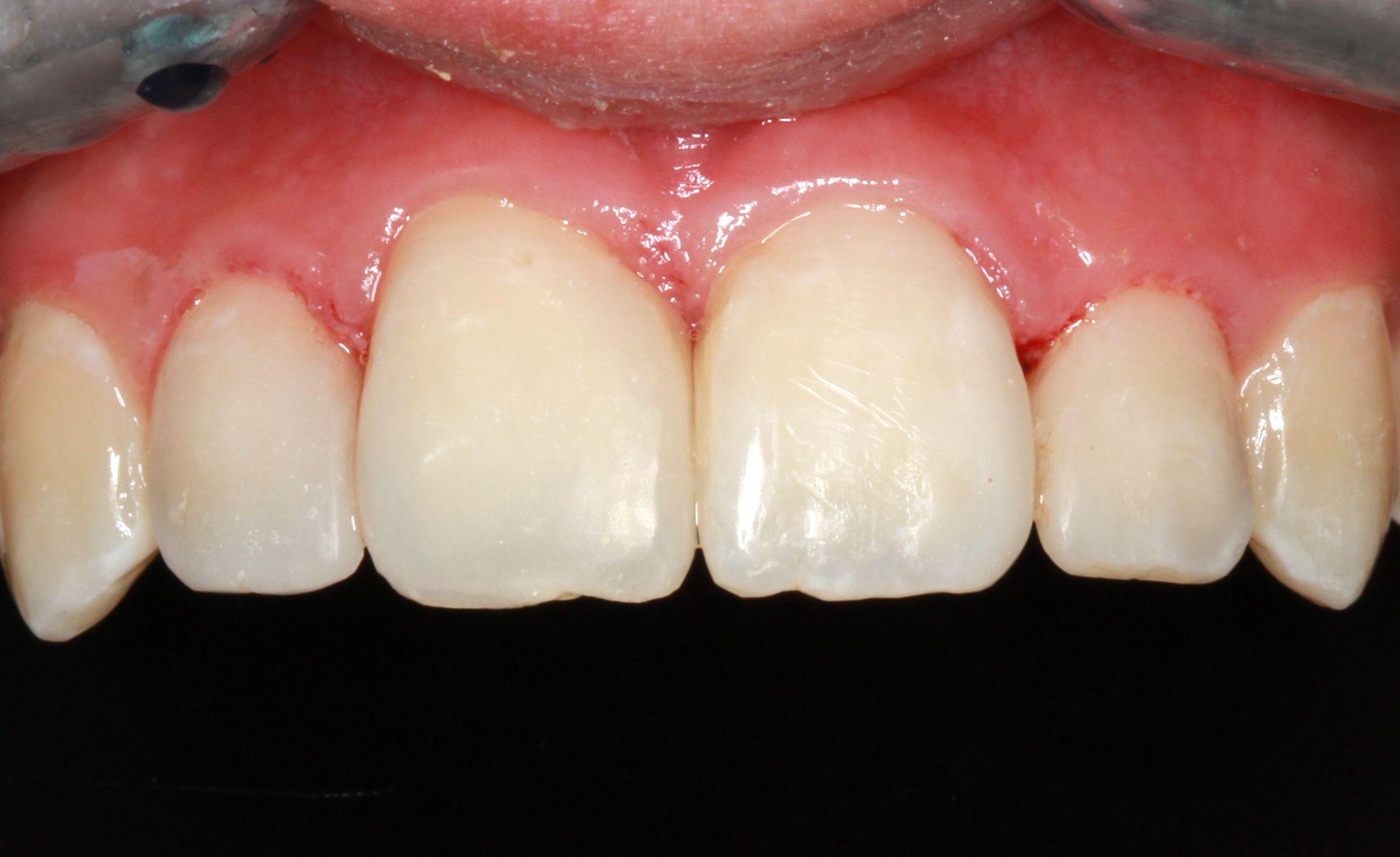 Foto 22 de Dentistas en La Eliana | Centro Odontológico La Eliana