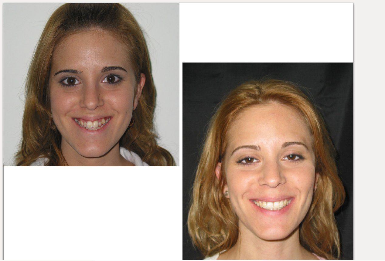 Foto 38 de Dentistas en La Eliana | Centro Odontológico La Eliana