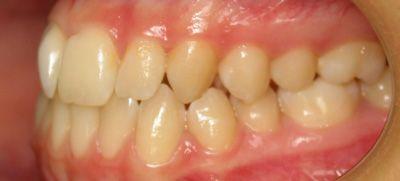 Foto 45 de Dentistas en La Eliana | Centro Odontológico La Eliana