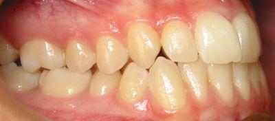 Foto 46 de Dentistas en La Eliana | Centro Odontológico La Eliana