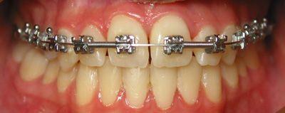 Foto 28 de Dentistas en La Eliana | Centro Odontológico La Eliana