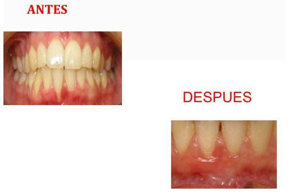Tratamiento dental, el antes y el después