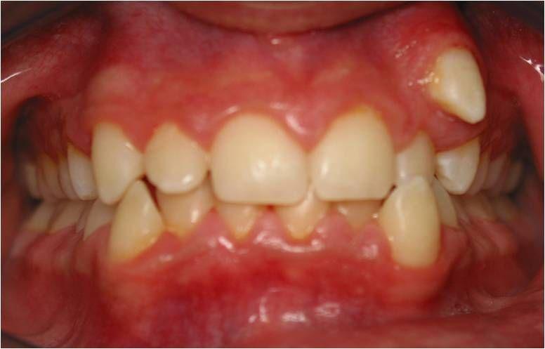 Ortodoncia: Tratamientos  de Centro Odontológico La Eliana