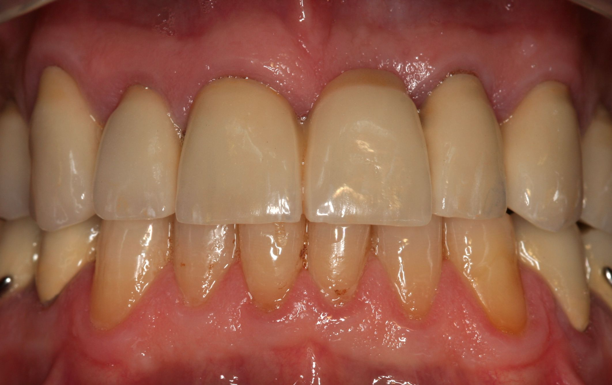 Rehabilitación: Tratamientos  de Centro Odontológico La Eliana