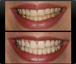 Foto 34 de Dentistas en La Eliana | Centro Odontológico La Eliana