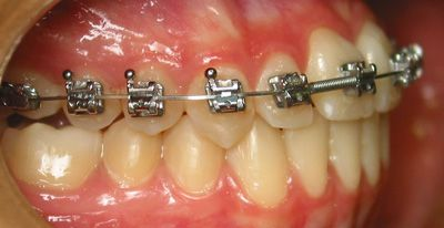 Foto 50 de Dentistas en La Eliana | Centro Odontológico La Eliana