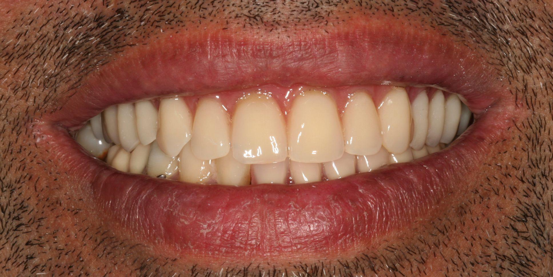 Foto 56 de Dentistas en La Eliana | Centro Odontológico La Eliana
