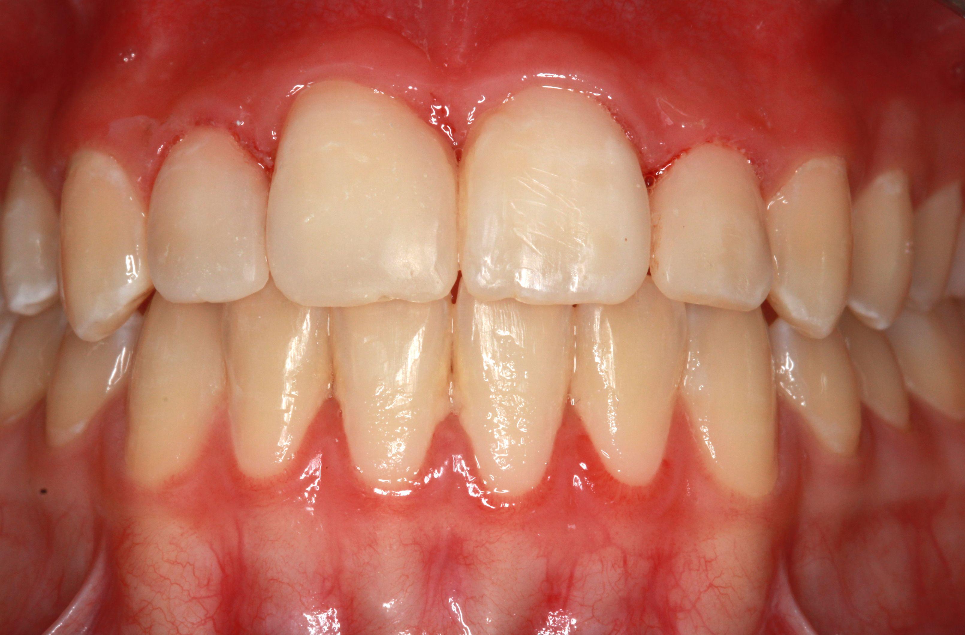 Foto 40 de Dentistas en La Eliana | Centro Odontológico La Eliana