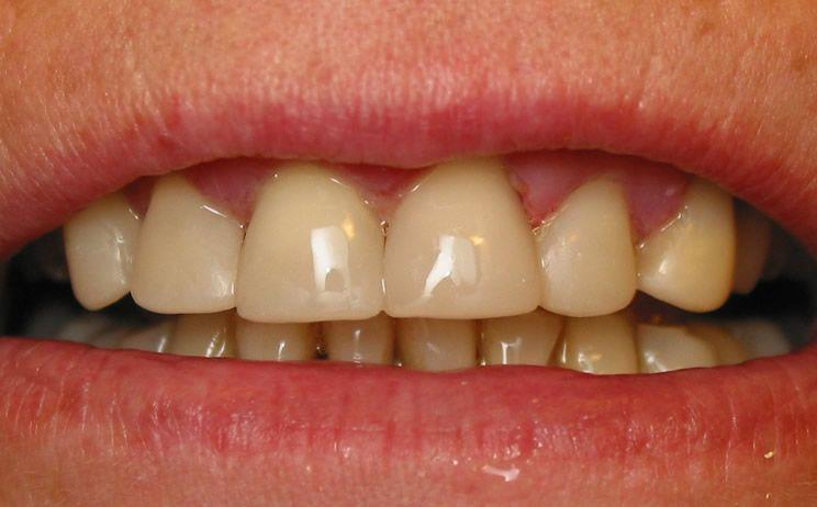 Escultura dental: Tratamientos  de Centro Odontológico La Eliana