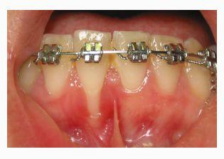 Injerto de tejido conectivo: Tratamientos  de Centro Odontológico La Eliana