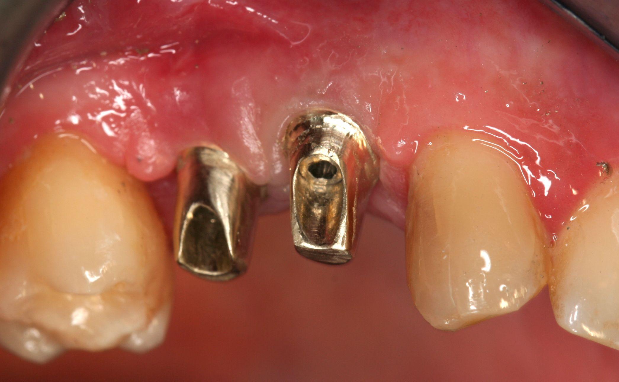 Implantes: Tratamientos  de Centro Odontológico La Eliana