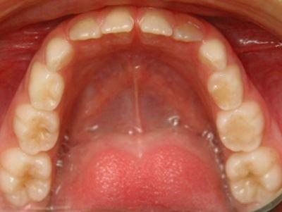 Caso 2: Tratamientos  de Centro Odontológico La Eliana