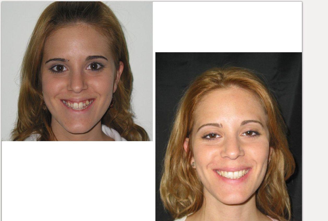 Antes y después de Laura